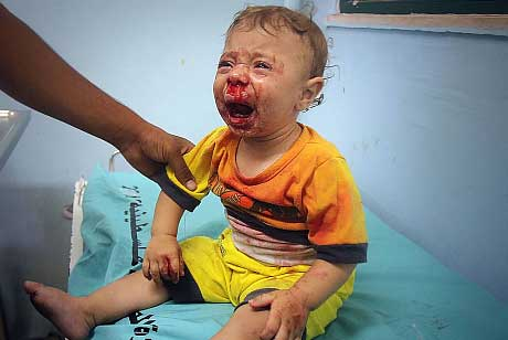 Palestinian baby wounded